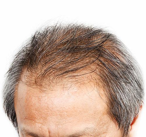 A quello che la calvizie di perdita di capelli sogna